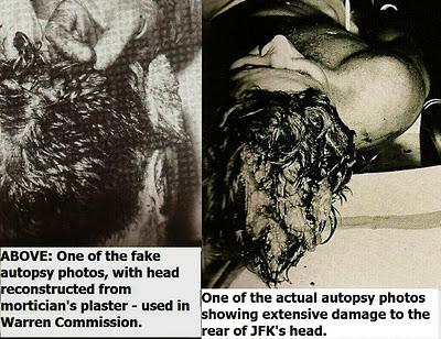 JFK-autopsy