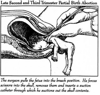abortion4