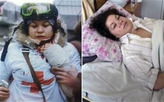 brave Olesya-Zhukorska recovers from sniper shot to neck