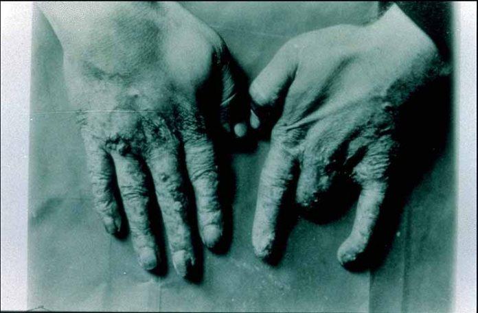Madame Curies' Hands