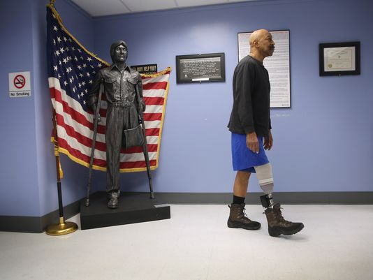 U.S. Military veteran and amputee Lloyd Epps walks after doctors serviced his prosthetic leg at the Veterans Administration(Photo: John Moore, Getty Images)