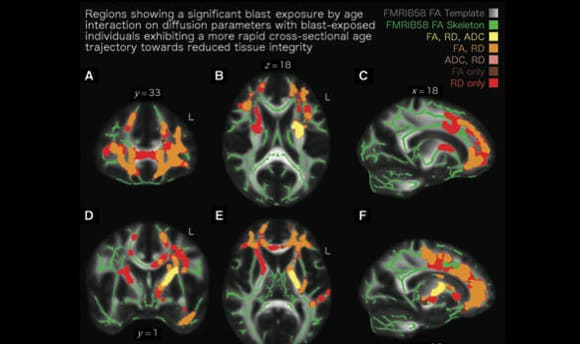 """""""Resting state"""" fMRI showing premature aging of veterans of Iraq and Afghanistan exposed to bomb blasts. VA Boston Healthcare System"""
