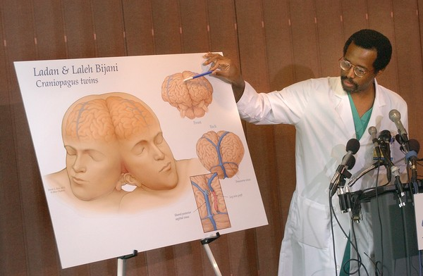 BALTIMORE,MD--JUNE 12, 2003-- Dr. Benjamin Carson, pediatric neurosurgeon at The Johns Hopkins Childrens Center joining a team of doctors in Singapore to separate adult twins conjoined at the head, Ladan and Laleh Bijani.  Digital Image # 0060.  Staff Photo by LLOYD FOX